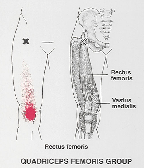 arm muscle pain